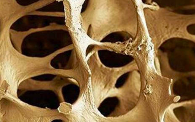 More research needed on alcohol and osteoporosis