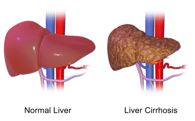 Meta-analysis: women drinking alcohol at higher risk for liver cirrhosis compared to men