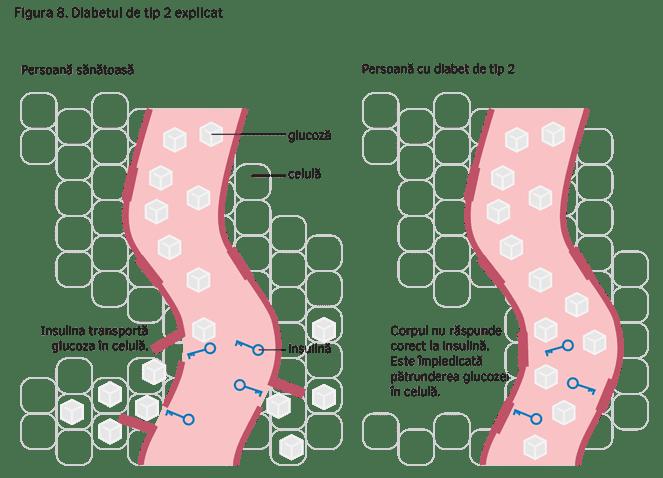 Figura 8. Diabetul de tip 2 explicat