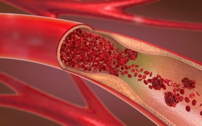 Meta-analysis finds no association between alcohol consumption and formation of blood clots in veins